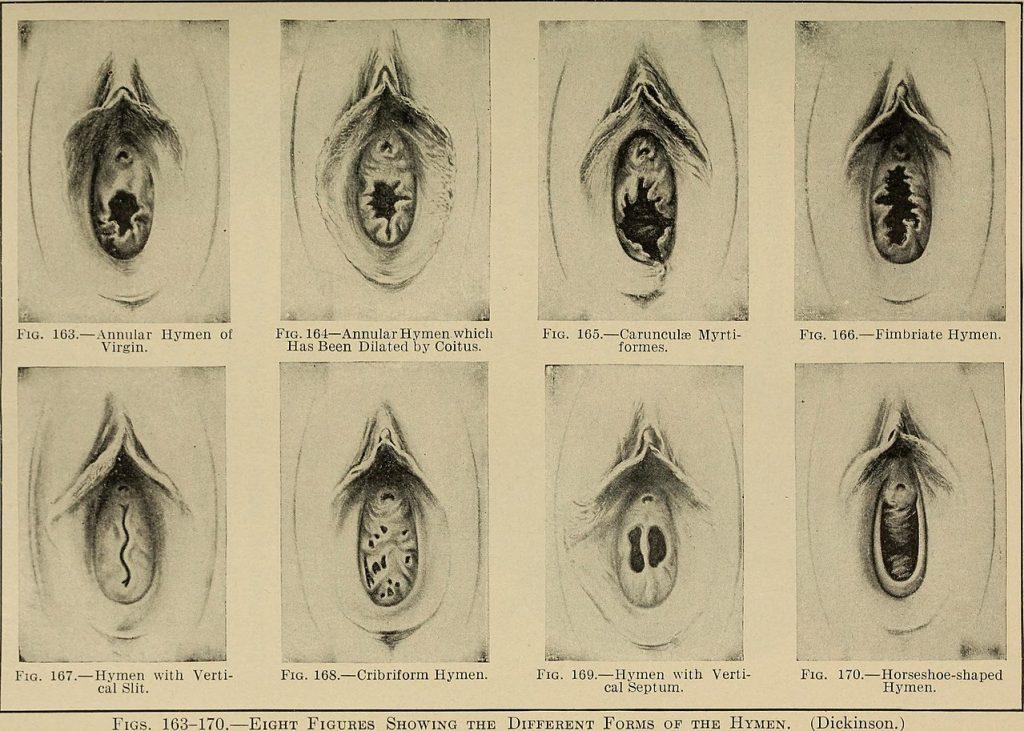 1280px Gynecological diagnosis 1910 14591495720